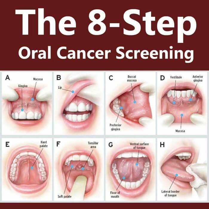 Oral Cancer Screening using Mouth Self Exam
